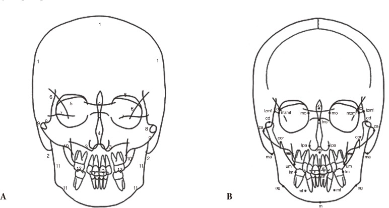 Analysis of Facial Asymmetry