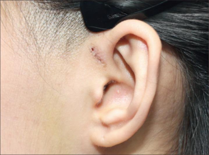 A Surgical Technique for Congenital Preauricular Sinus