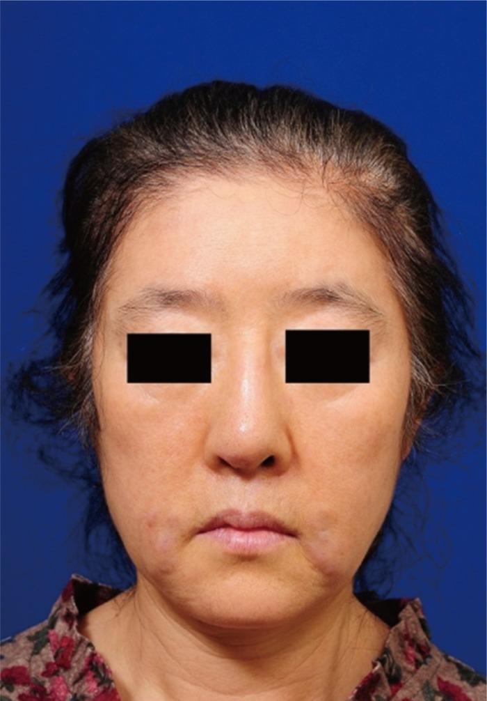 acfs :: Archives of Craniofacial Surgery